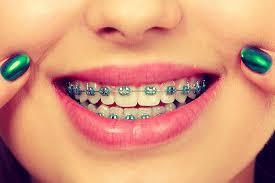 نکاتی برای بالا بردن تاثیر درمان ارتودنسی دندان