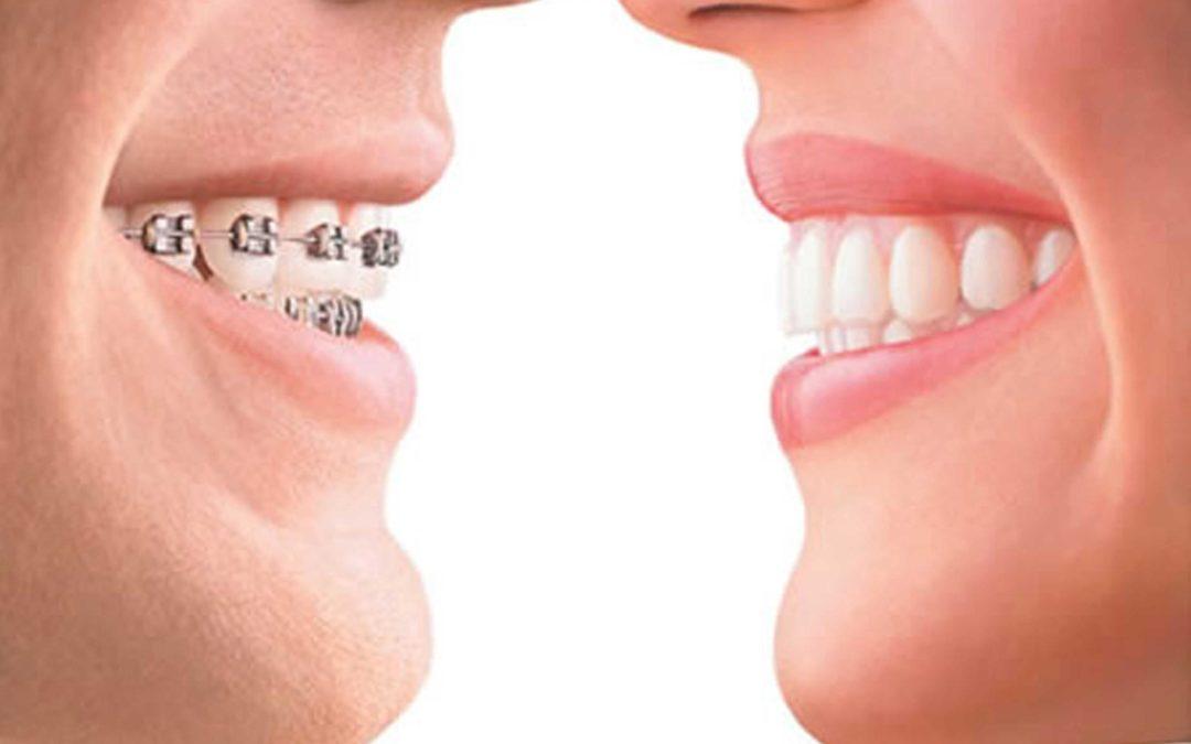 چرا باید پس از برداشتن بریس دندان ها را سفید کرد؟