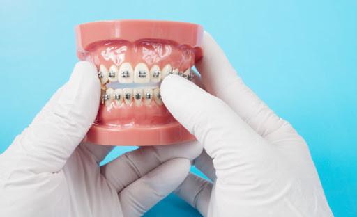 ارتودنسی دندان چیست ؟