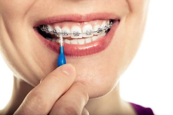 مسواک بین دندانی چه نوع مسواکی است ؟
