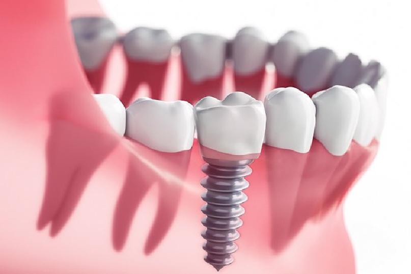 همه چیز درباره ایمپلنت دندان