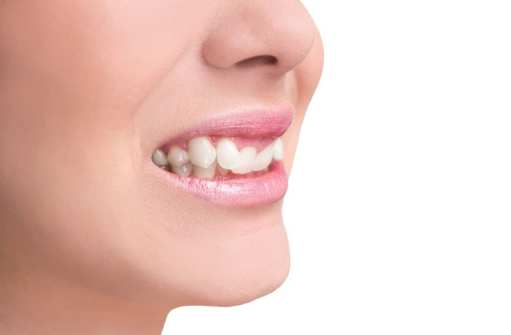 ارتودنسی دندان های نیش