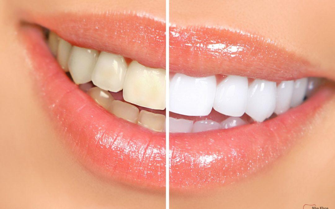 سفید کردن دندان ها با روغن نارگیل