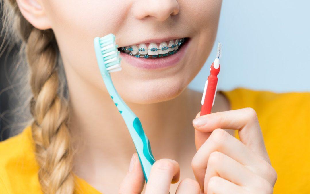مسواک بین دندانی چه نوع مسواکی است؟ (مسواک ارتودنسی)