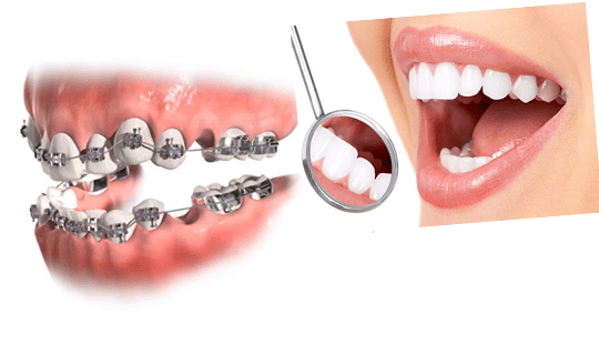 کشیدن دندان برای درمان ارتودنسی