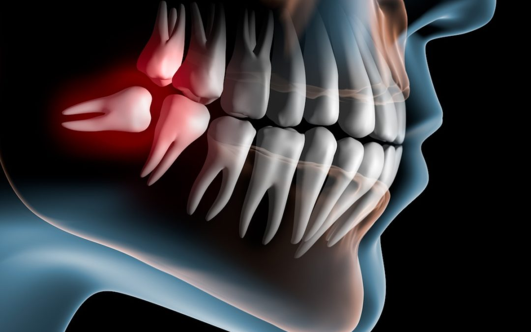 چرا ما دندان های عقل داریم؟